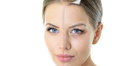 Старчески петна: причини, методи за превенция и отстраняване